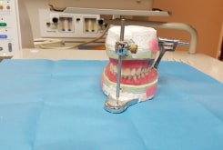 Picture of Partial and Full Dentures