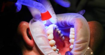 Picture of Extractions