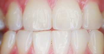 Picture of Non-surgical Periodontal Gum Treatment
