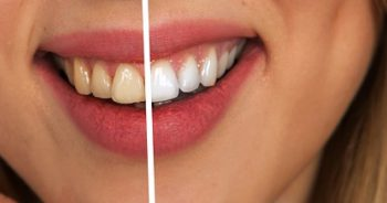 Picture of Teeth Whitening